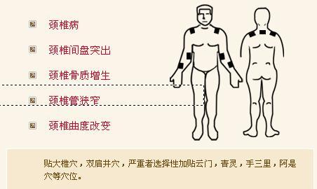 股骨头坏死、膝关节病变,常用穴位