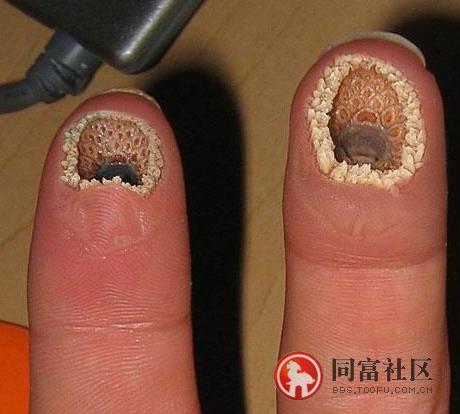 In hole ass fingerr Put