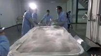 中国本土完成首例人体冷冻保存