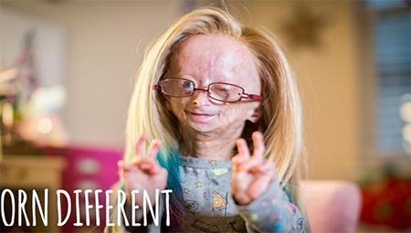 早衰成80岁老人,她其实是个11岁的小萝莉