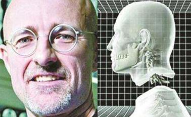 世界首例头颅移植手术实验成功
