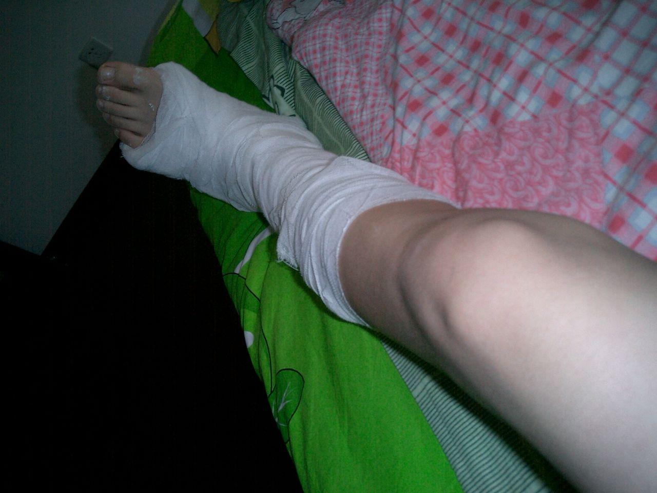 其实我的腿打了石膏还是蛮漂漂;