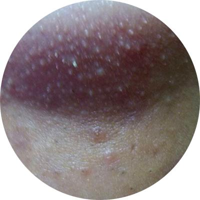 粉刺_粉刺和痘痘的区别 粉刺痘痘怎么消除?