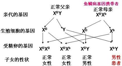 鱼鳞皮肤病囹�a�`�yx~x�_人类中有一种遗传性皮肤病--鱼鳞病,为伴x染色体隐性遗传病.