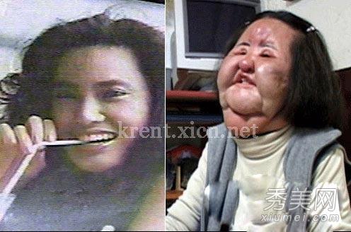 香港十大明星整容失败_曝光12位整容失败惨变鬼脸的明星