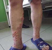 不妨略微叉开腿