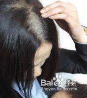 引起女性斑秃有哪些原因