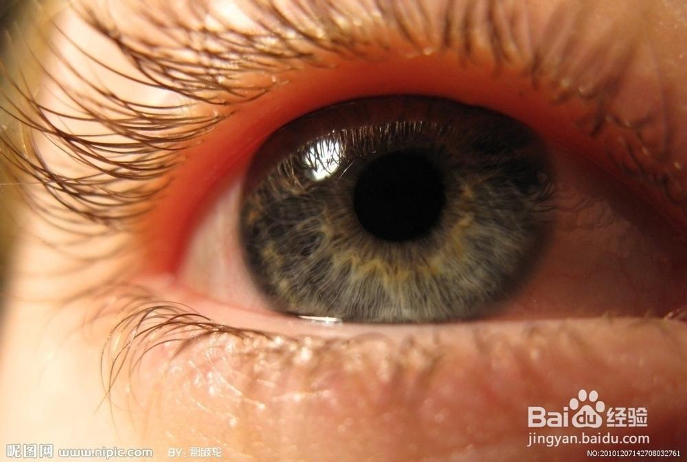 干眼病.迎风流泪多是干眼病,眼睛有灼热感和异物感.