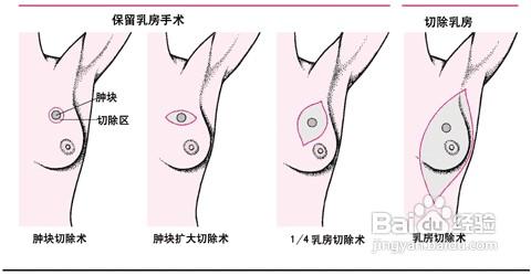 乳腺增生对于全体女人来说