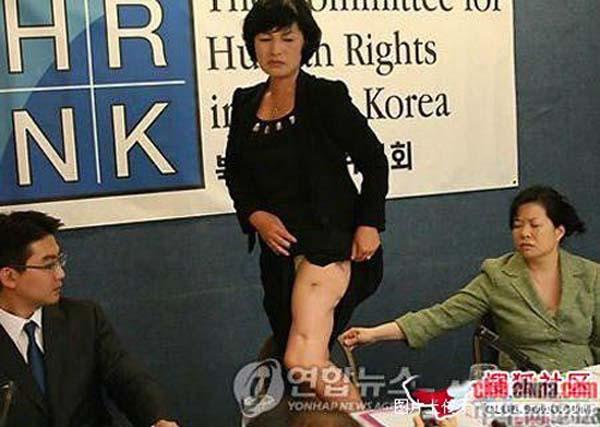 震惊:朝鲜美女记者竟现场掀开裙子亮伤