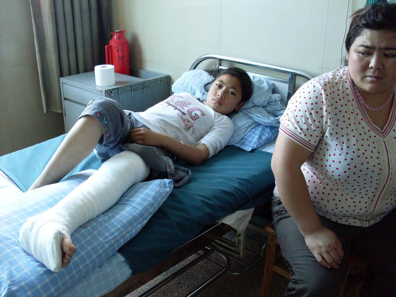 左腿因胫腓骨骨折而被扎了石膏绷带的义乌市廿三里李