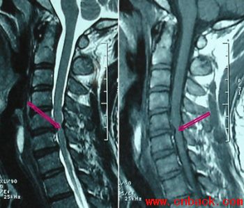 正常颈椎ct图片图片大全 正常寰枢关节 颈椎ct三围图片