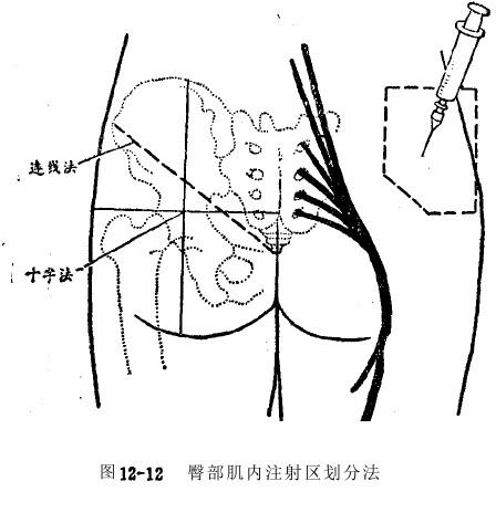 小儿肌肉注射定位图_臀部肌肉注射位置