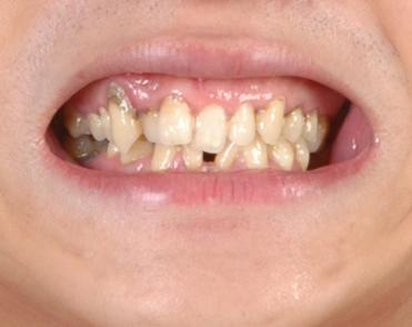 重庆牙齿整形多少钱_牙齿矫正_百度知道