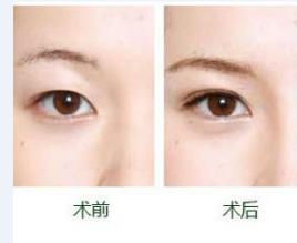 韩式双眼皮对比_韩式双眼皮手术_百度百科
