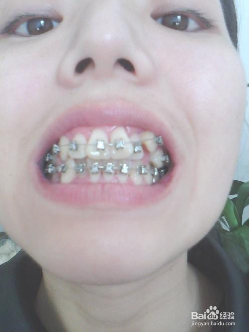 重庆牙齿整形多少钱_牙齿矫正:[7]带牙套多少钱?我的整牙价格_百度经验