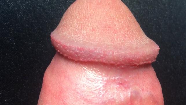 冠状沟有珍珠疹图片_请问我这个是冠状沟珍珠疹吗?_百度知道