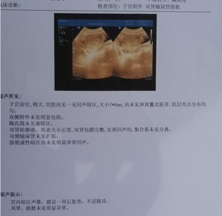 胎儿一个月的图片_怀孕的肚子图片一个月-刚怀孕一个多月图片-怀孕53天的肚子图片 ...