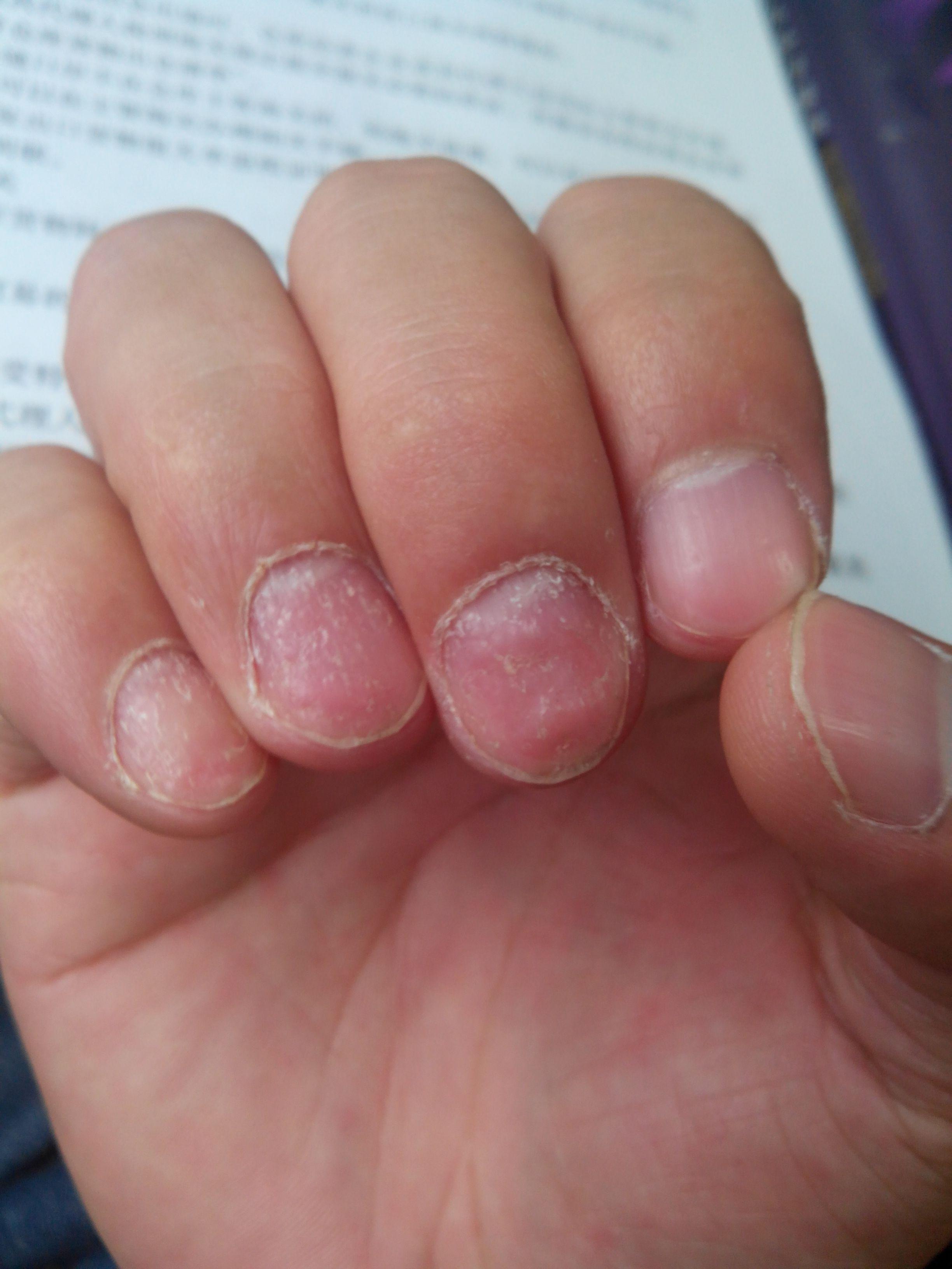 灰指甲用啥药好_我的手指甲是不是灰指甲?_百度知道