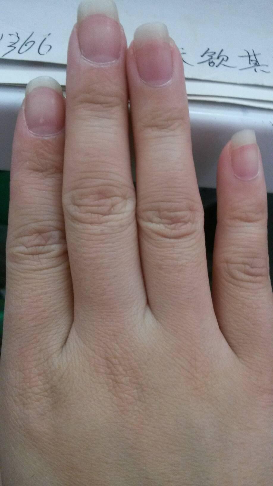 寶寶手指甲凹陷是怎么回事圖片