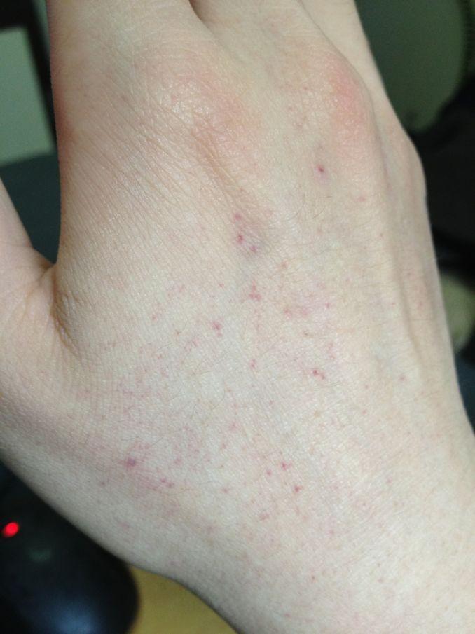 毛细血管破裂出血点_我2011年九月检查出梅毒 打了四针长效青霉素 之后三个月复查 ...