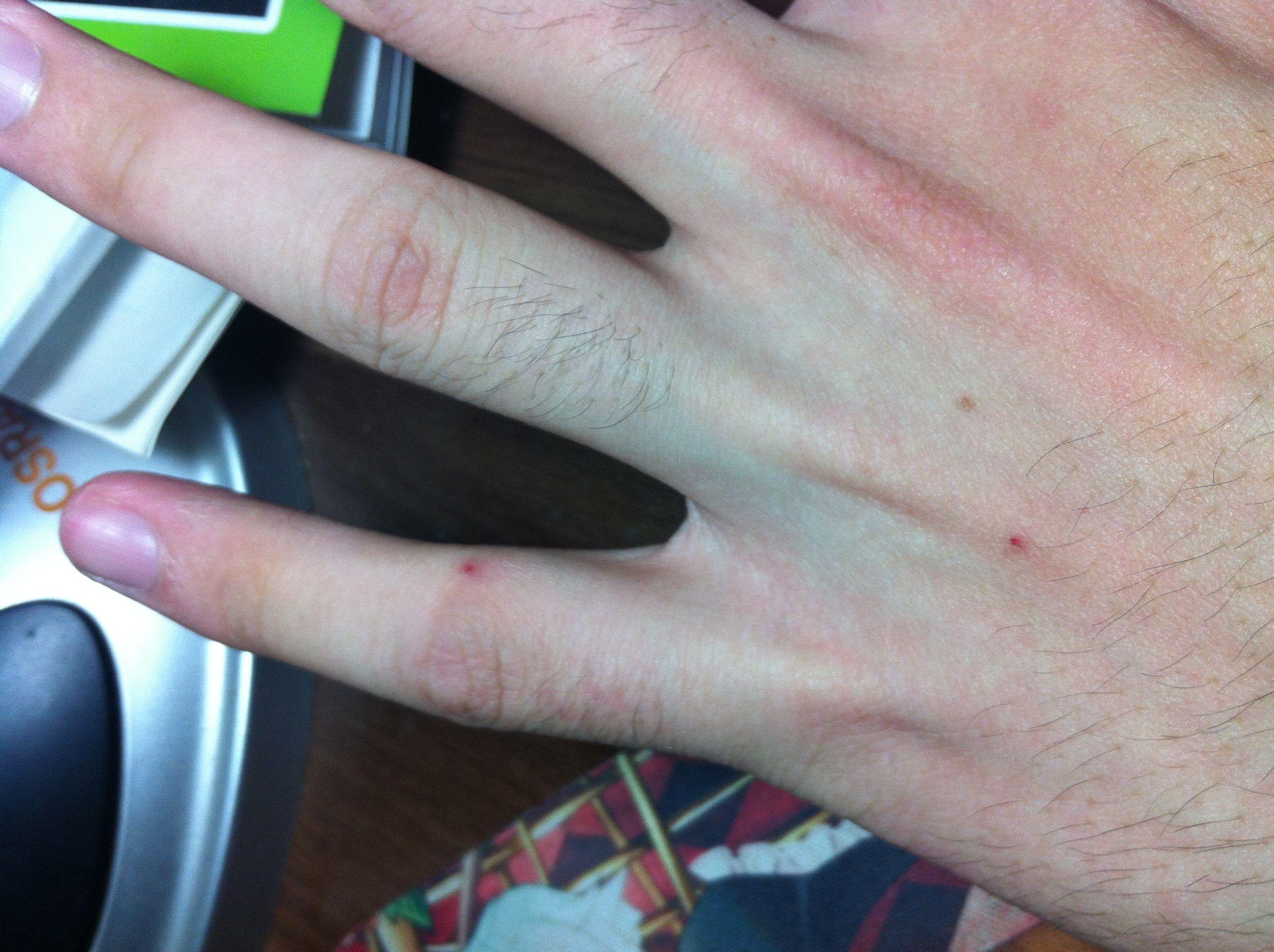 白血病: 请您看看这是白血病的出血点么?_百度知道