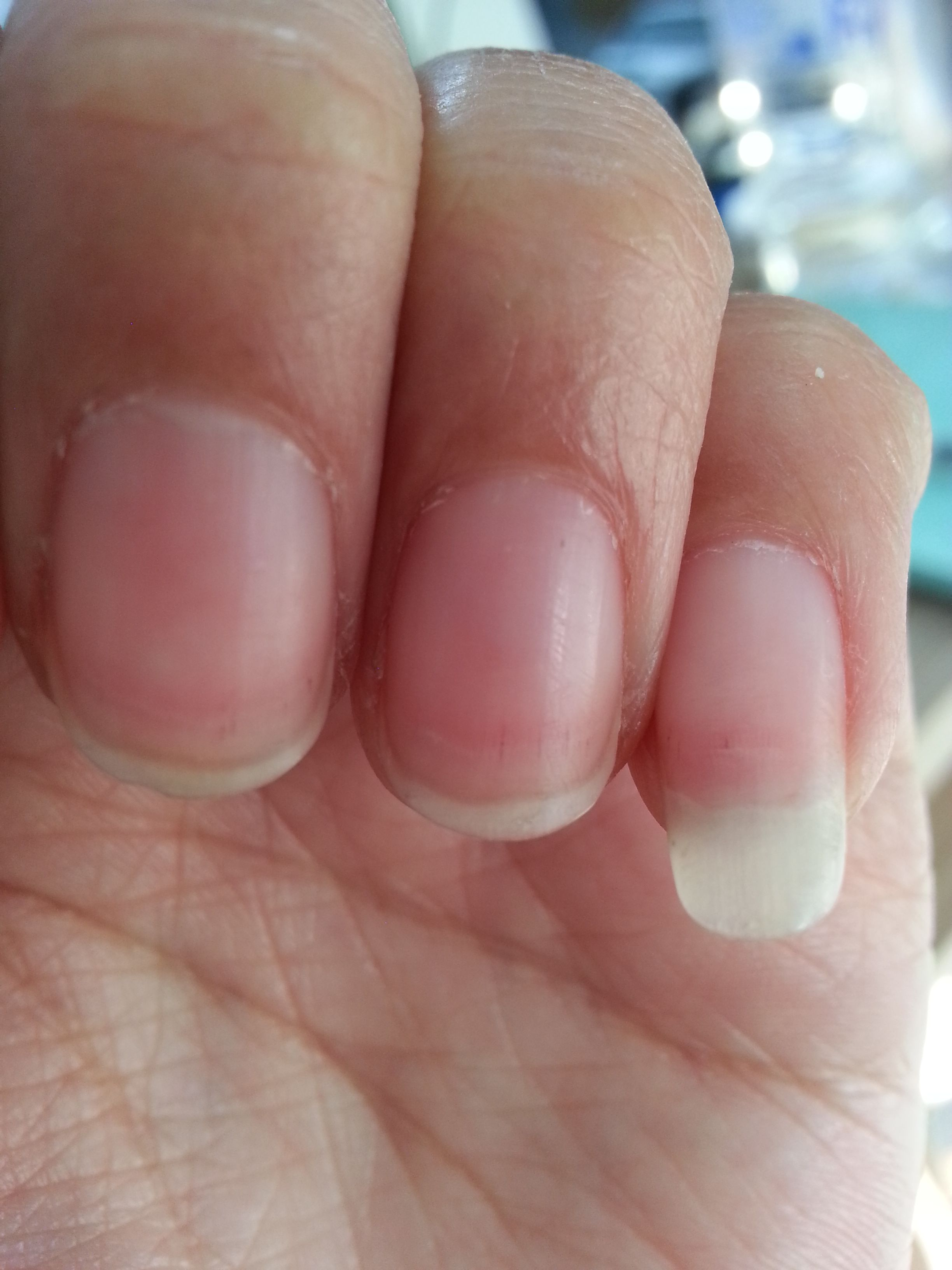 手指甲前端有血絲,一碰還很疼,是怎么回事,過段時間指甲長出來,血絲圖片