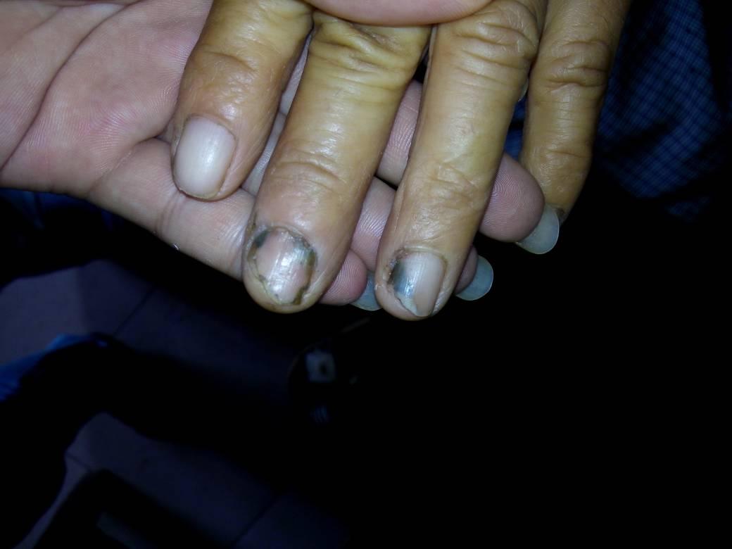 一直不剪手指甲的話,能長到多長?圖片