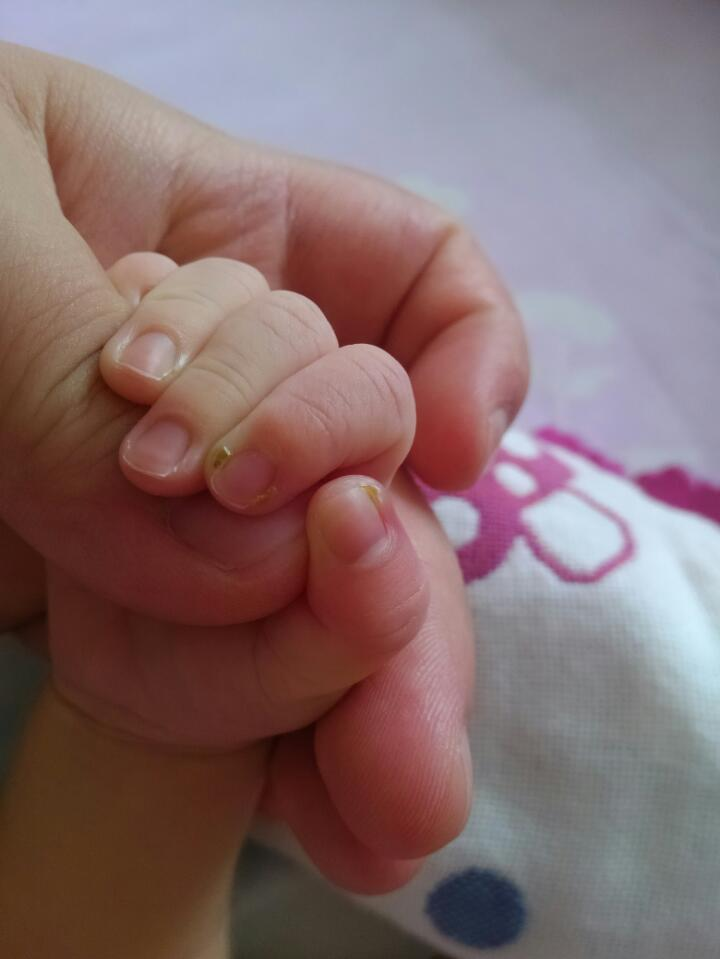 新生兒手指甲發濃,該怎么辦圖片