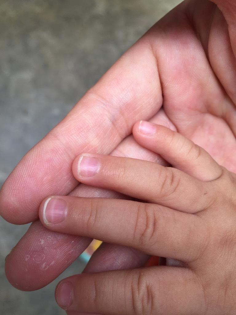 寶寶手指甲有白痕圖片