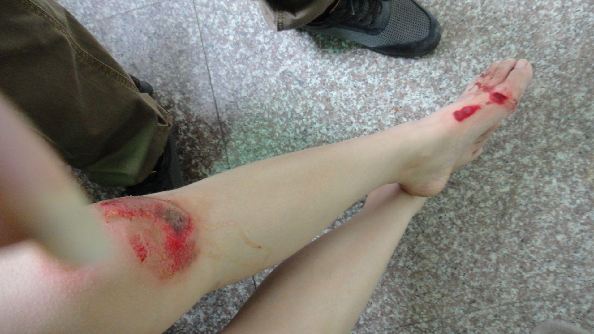 不���y�9.��b�_摔到膝盖下面一点,擦伤好了后,快掉的伤疤,不小心弄掉