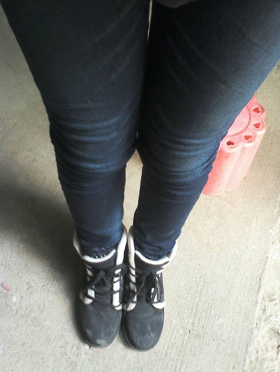 正常女生腿型_请问一下这是什么腿型?是x型腿么?如果是,怎么改正? 请告诉我 ...