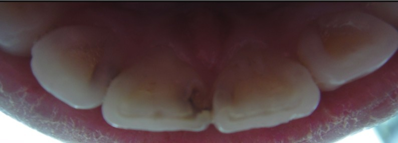 牙里的虫子长什么样_门牙钴铬烤瓷怎么样。希望专业医生给点意见。时间长了会黑吗 ...
