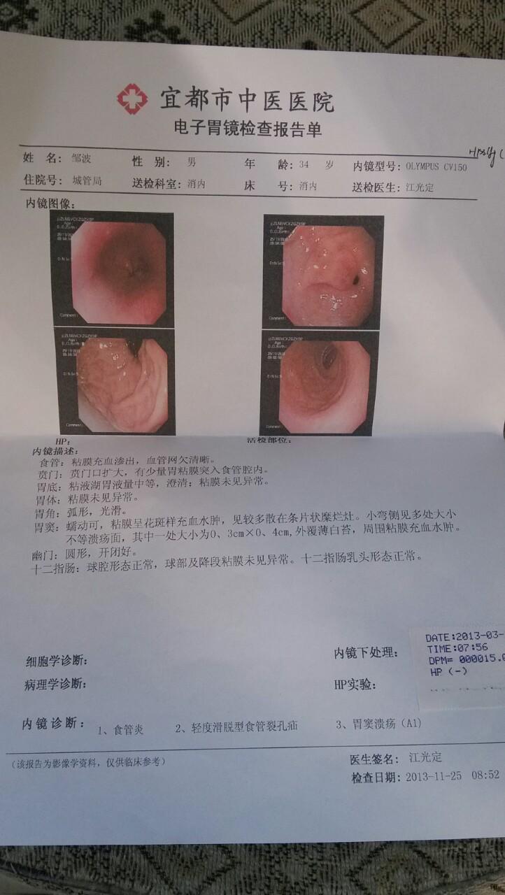 胆囊炎症状吃什么药_胃窦溃疡,食炎,轻度滑脱型食裂孔疝,慢性胆囊炎,慢性