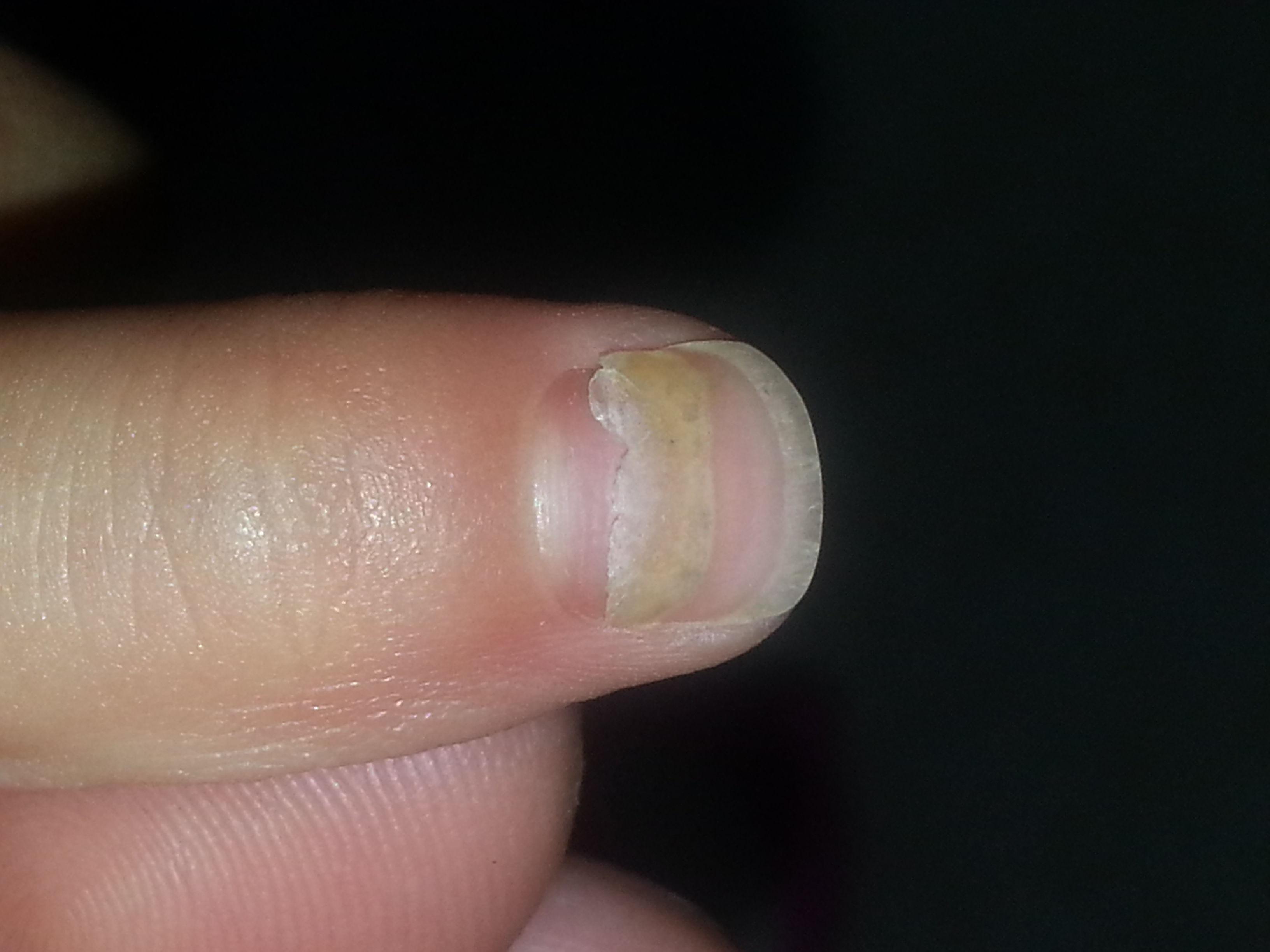 請教大蝦,三歲多的小孩兒手指甲蓋脫落是怎么回事,拍了幾張圖,大家圖片