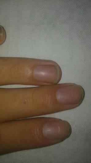 手指甲里面白白的怎么回事啊?圖片