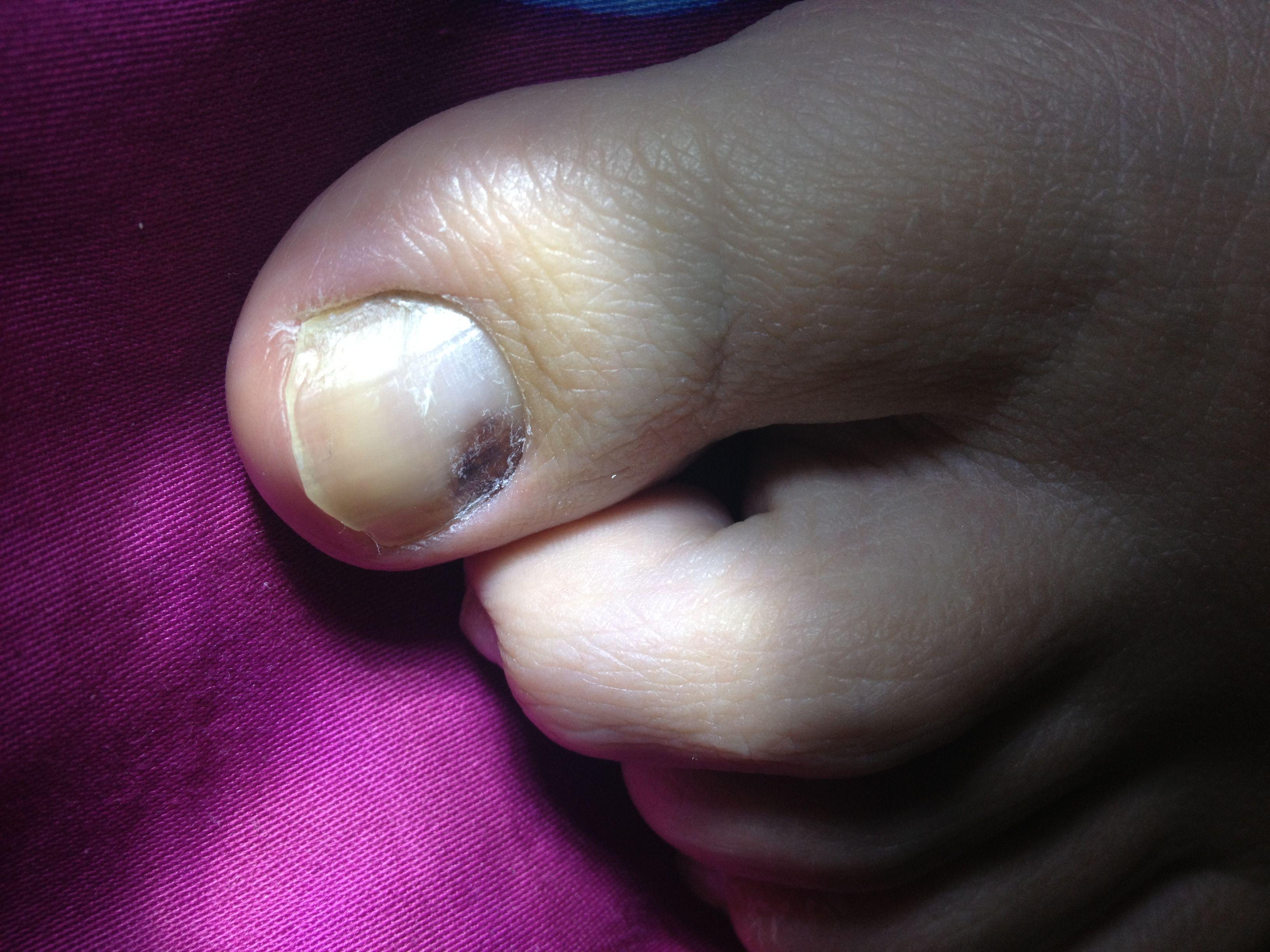 大脚趾黑色素瘤图片_2014脚指甲黑色素瘤图片脚指甲黑色素瘤图片 黑色素瘤图片