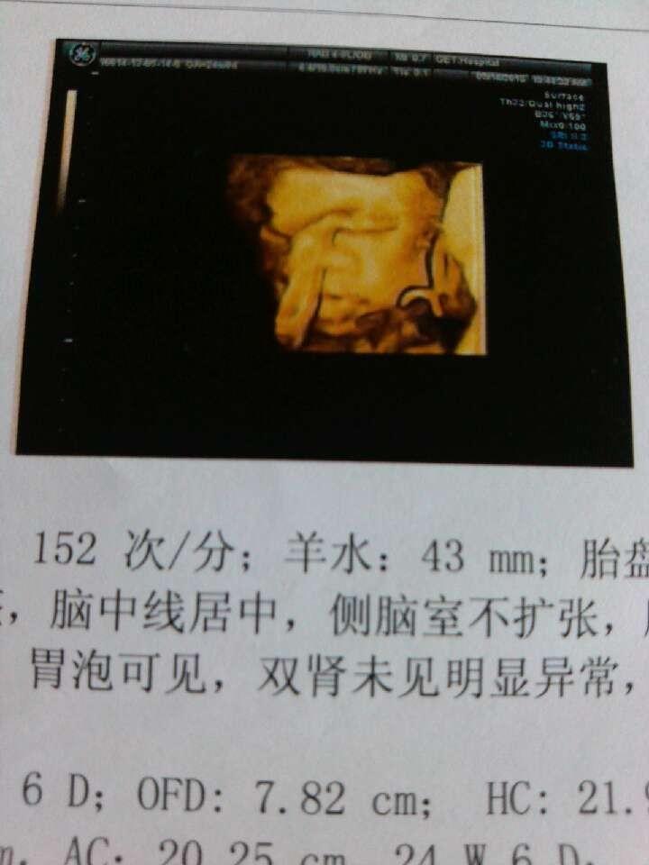 四维彩超图像_大家帮我看一下我24周的四维彩超胎儿图像正常吗?我感觉鼻子 ...