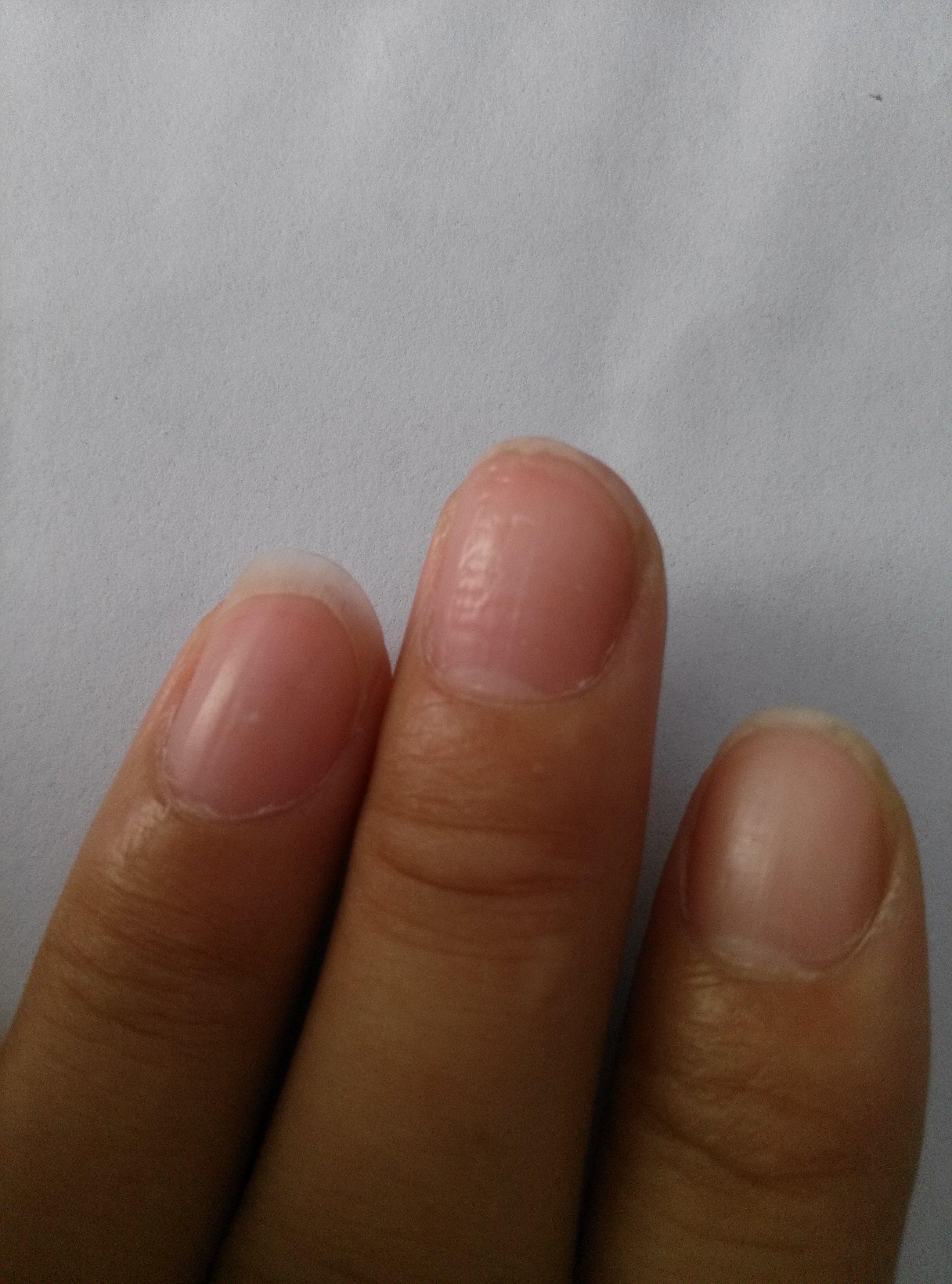 為什么我的手指甲上面不平滑?圖片