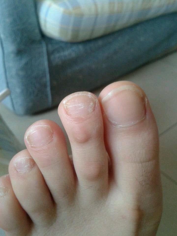 灰指甲用啥药好_白色表浅型灰指甲要用什么外用药呢?有什么办法,要到医院看 ...
