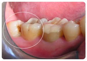 智齿图片大全_长智齿形成盲袋,可以去小牙科诊所吗?还是去医院拔掉 ...