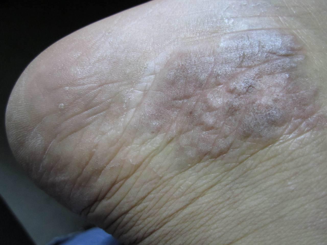 皮癣症状图片_这个皮肤病很久了,前两年看医生说是钱币状湿疹,最近用了快 ...