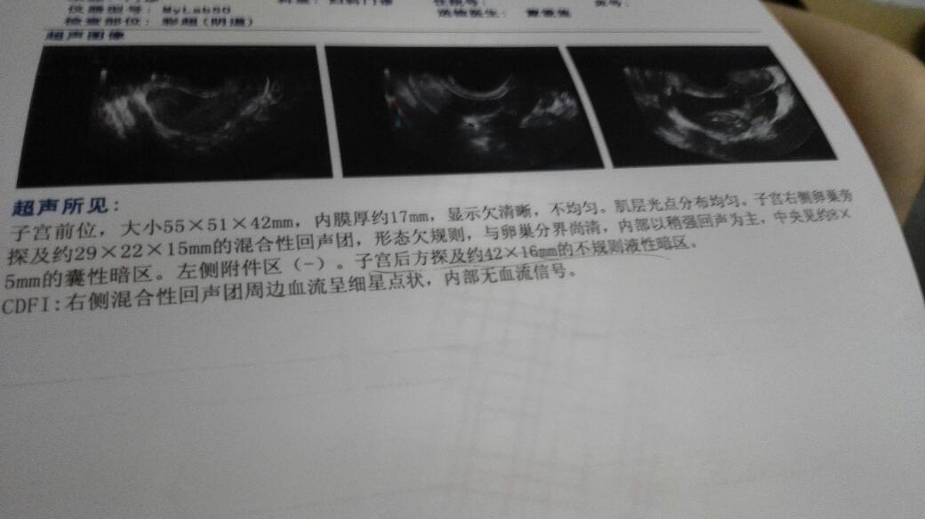 阴超子宫_各位医生朋友能否帮我看看这是宫外孕吗?怀孕42天今天的阴超结果.