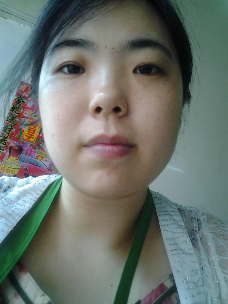 30岁女人脸上长斑_女人斑的种类图片大全-所有斑的区别高清图片,晒斑是什么样子的 ...