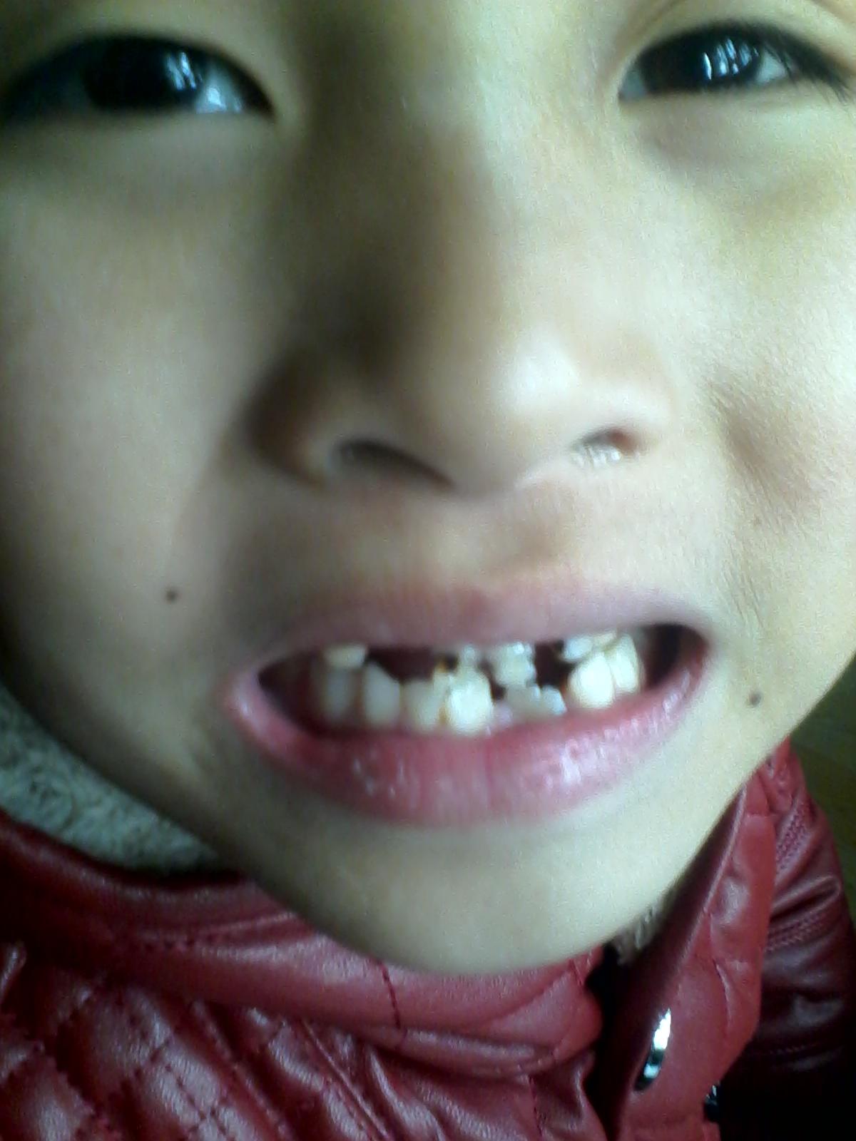 宝宝有蛀牙_7岁小孩牙齿_百度宝宝知道
