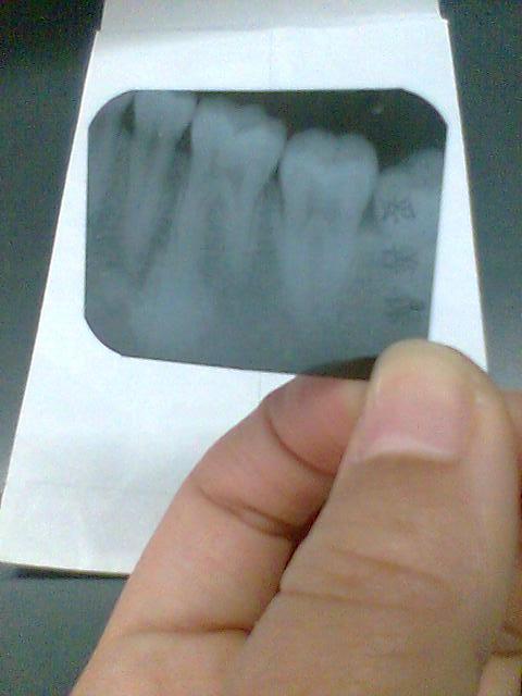 牙癌是什么症状_我是不是得了牙龈癌?好心人和专家帮忙看看.谢谢
