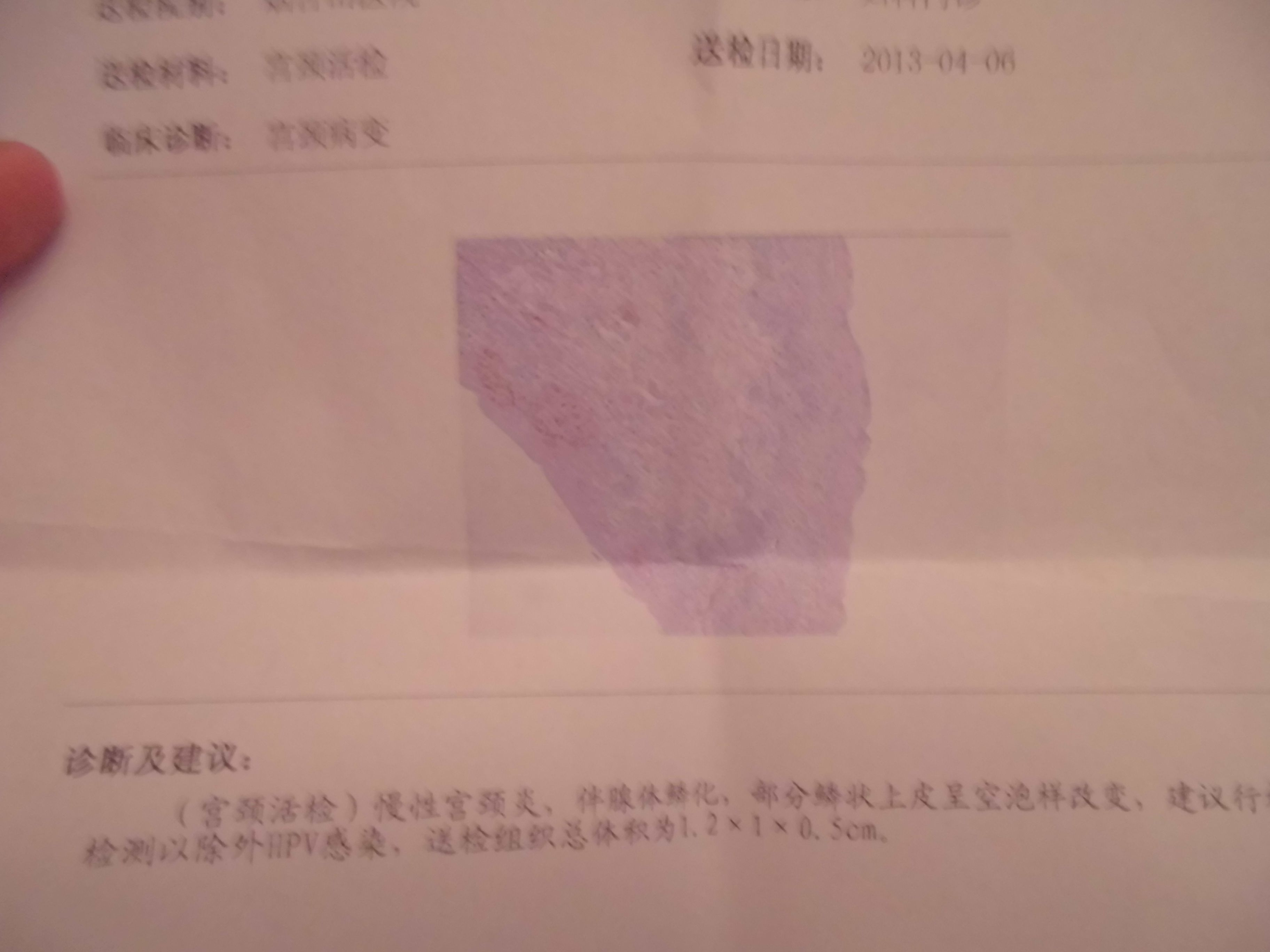 慢性宫颈炎hpv感染_急!(宫颈活检)慢性宫颈炎。半腺体磷化,部分鳞状上皮呈空 ...