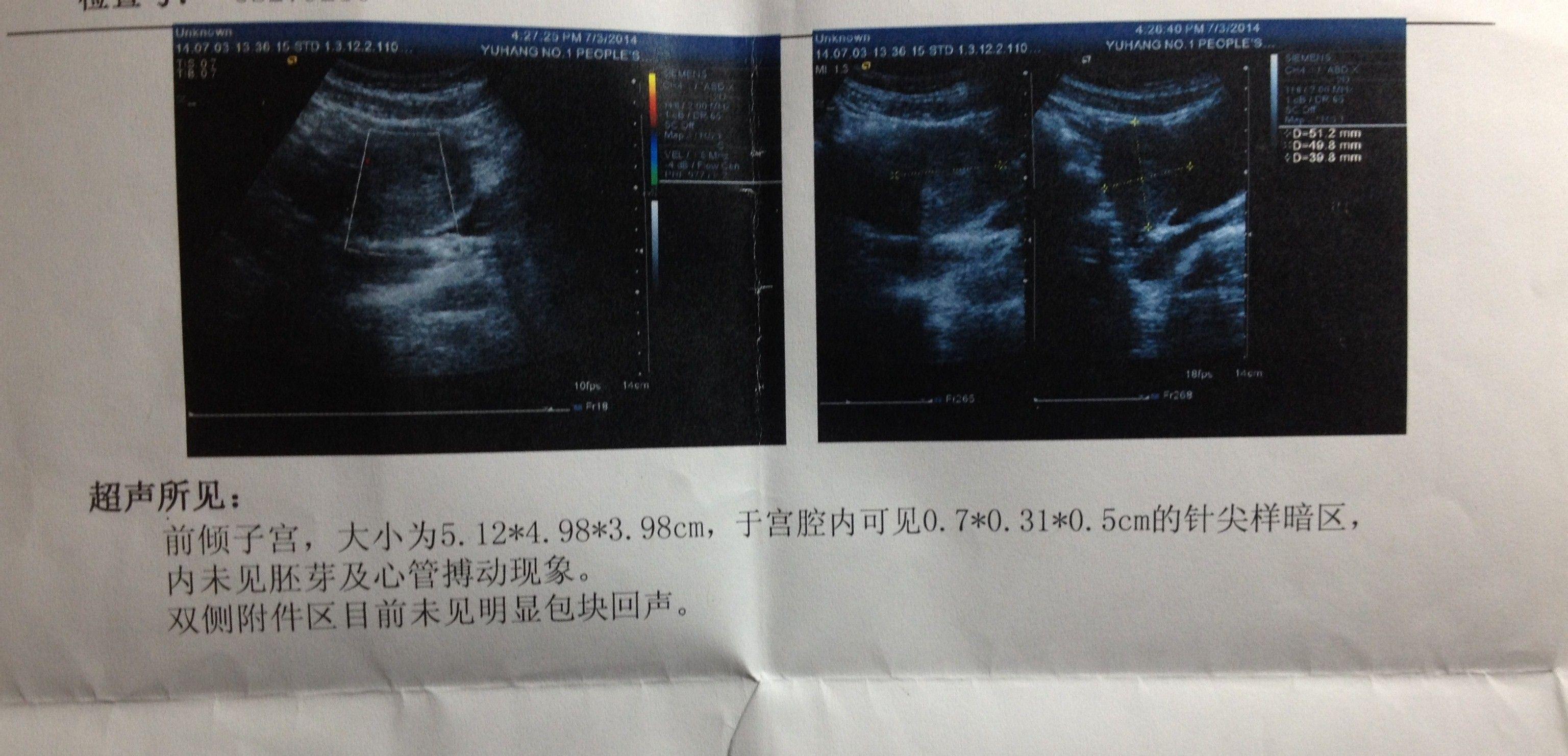 胎儿每月发育图_一到十月的胎儿发育图-双胞胎肚子每月变化图_一到十月胎位图