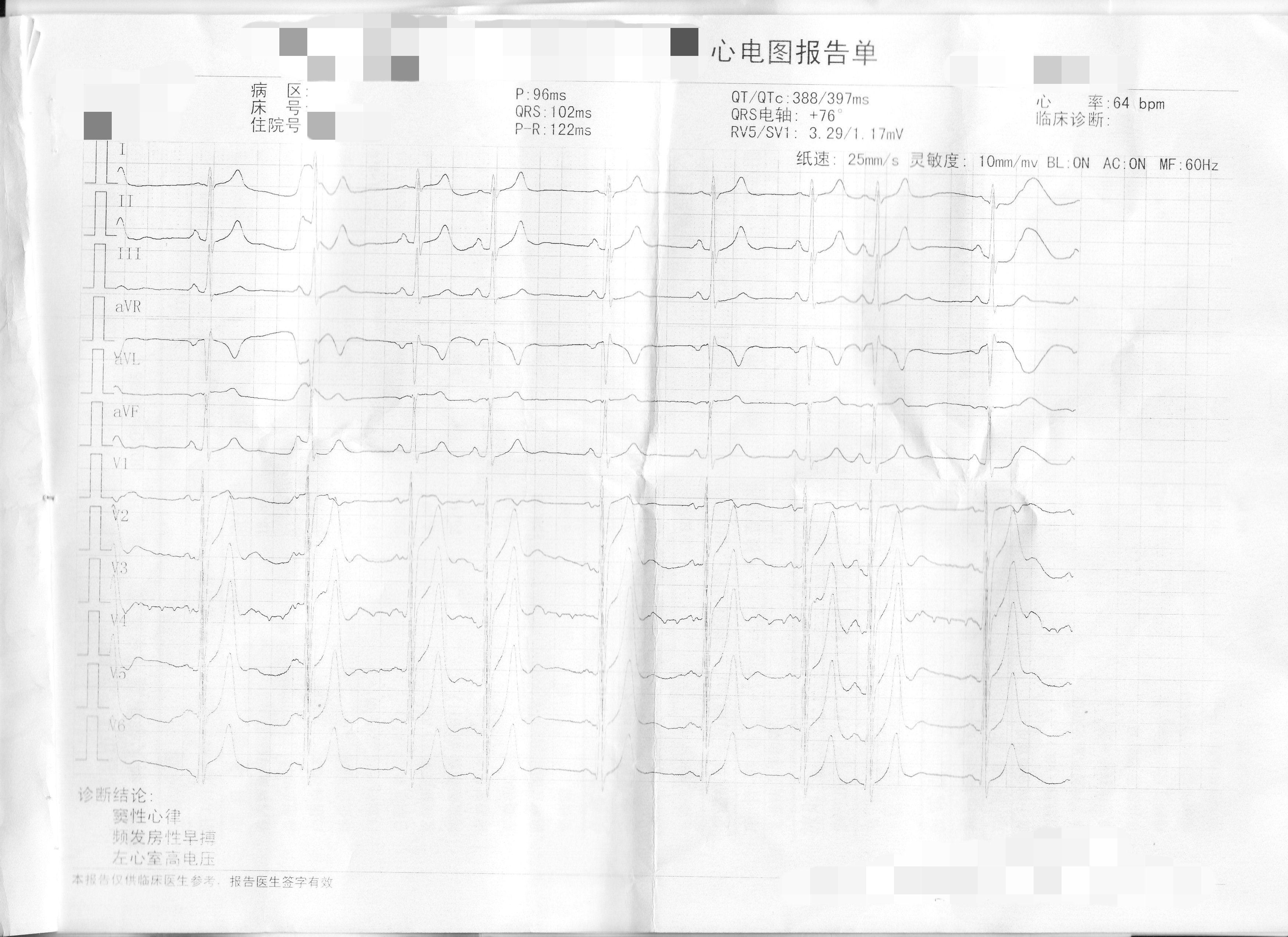 """窦性心律不齐 早搏_公务员预检,心电图报告单上写着""""窦性心律、频发房性早搏 ..."""