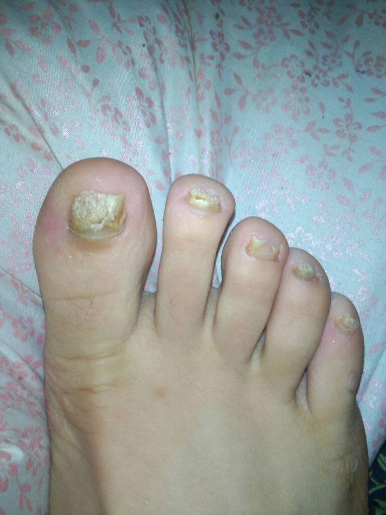 小孩脚指甲凹凸不平_脚指甲出现黑色斑块-脚指甲有黑色斑块|脚趾甲黑色素瘤早期|脚 ...